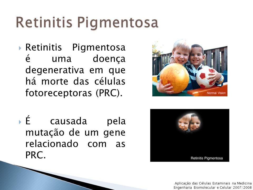 Retinitis Pigmentosa Retinitis Pigmentosa é uma doença degenerativa em que há morte das células fotoreceptoras (PRC).