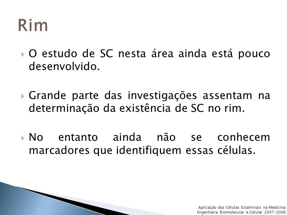 Rim O estudo de SC nesta área ainda está pouco desenvolvido.