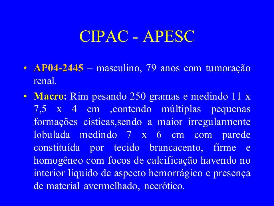 CIPAC - APESC AP04-2445 – masculino, 79 anos com tumoração renal.