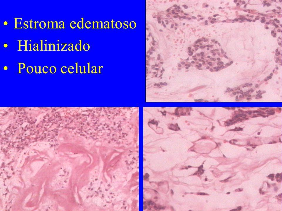 Estroma edematoso Hialinizado Pouco celular