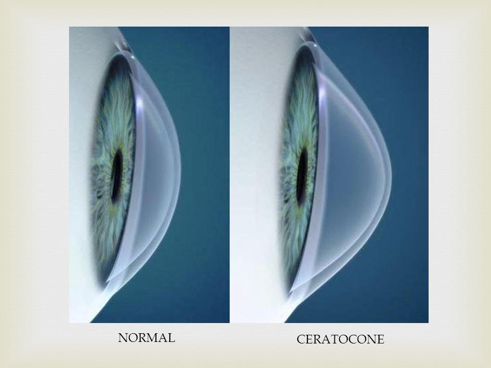 NORMAL CERATOCONE