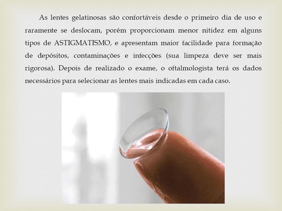As lentes gelatinosas são confortáveis desde o primeiro dia de uso e raramente se deslocam, porém proporcionam menor nitidez em alguns tipos de ASTIGMATISMO, e apresentam maior facilidade para formação de depósitos, contaminações e infecções (sua limpeza deve ser mais rigorosa).