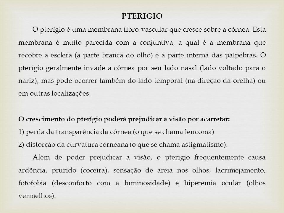 PTERIGIO