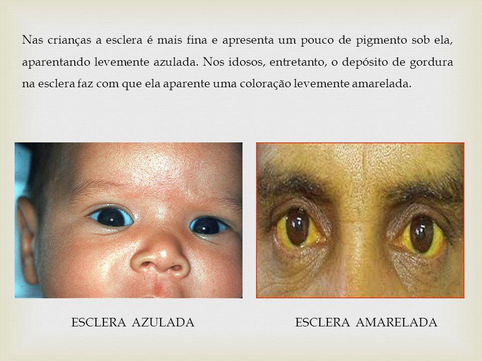 Nas crianças a esclera é mais fina e apresenta um pouco de pigmento sob ela, aparentando levemente azulada. Nos idosos, entretanto, o depósito de gordura na esclera faz com que ela aparente uma coloração levemente amarelada.