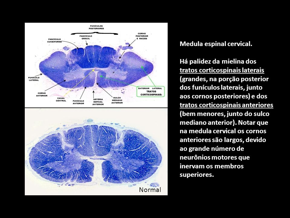 Normal Medula espinal cervical.