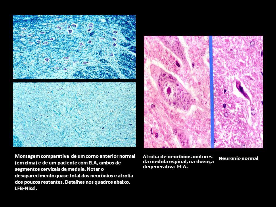 Atrofia de neurônios motores da medula espinal, na doença degenerativa ELA.