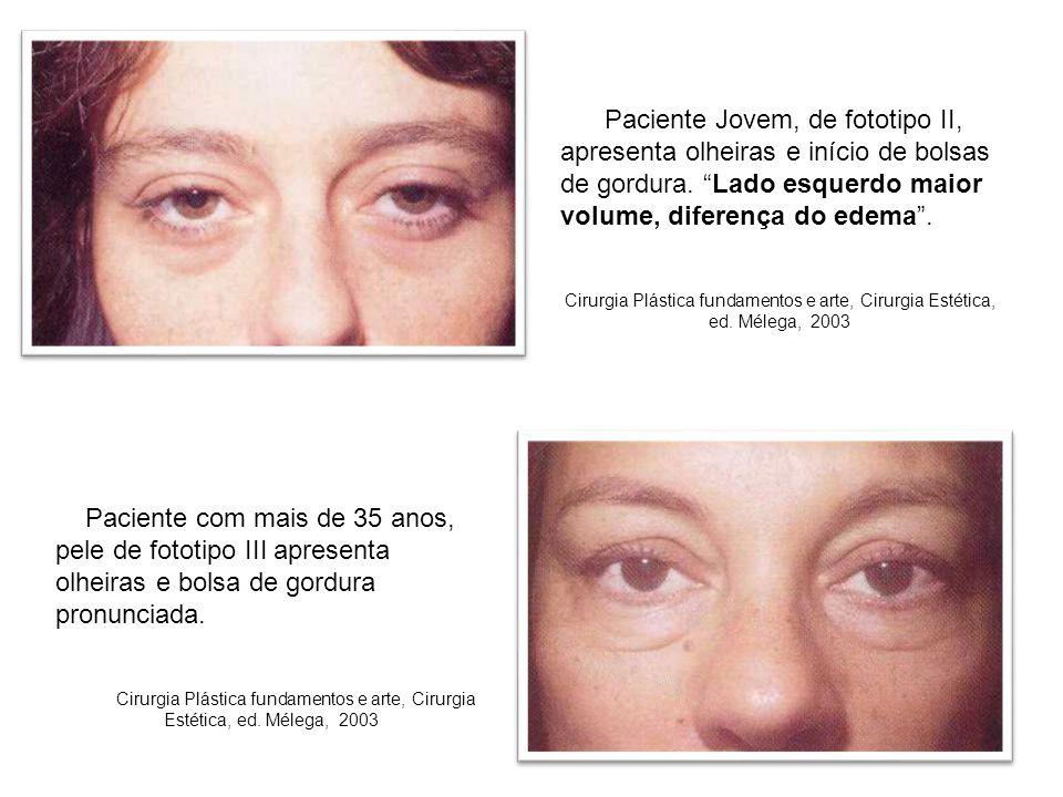 Paciente Jovem, de fototipo II, apresenta olheiras e início de bolsas de gordura. Lado esquerdo maior volume, diferença do edema .