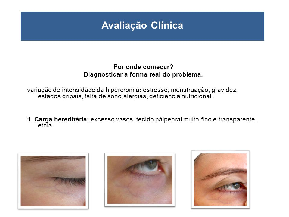 Diagnosticar a forma real do problema.