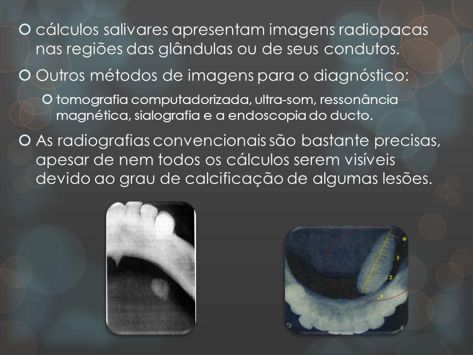 Outros métodos de imagens para o diagnóstico: