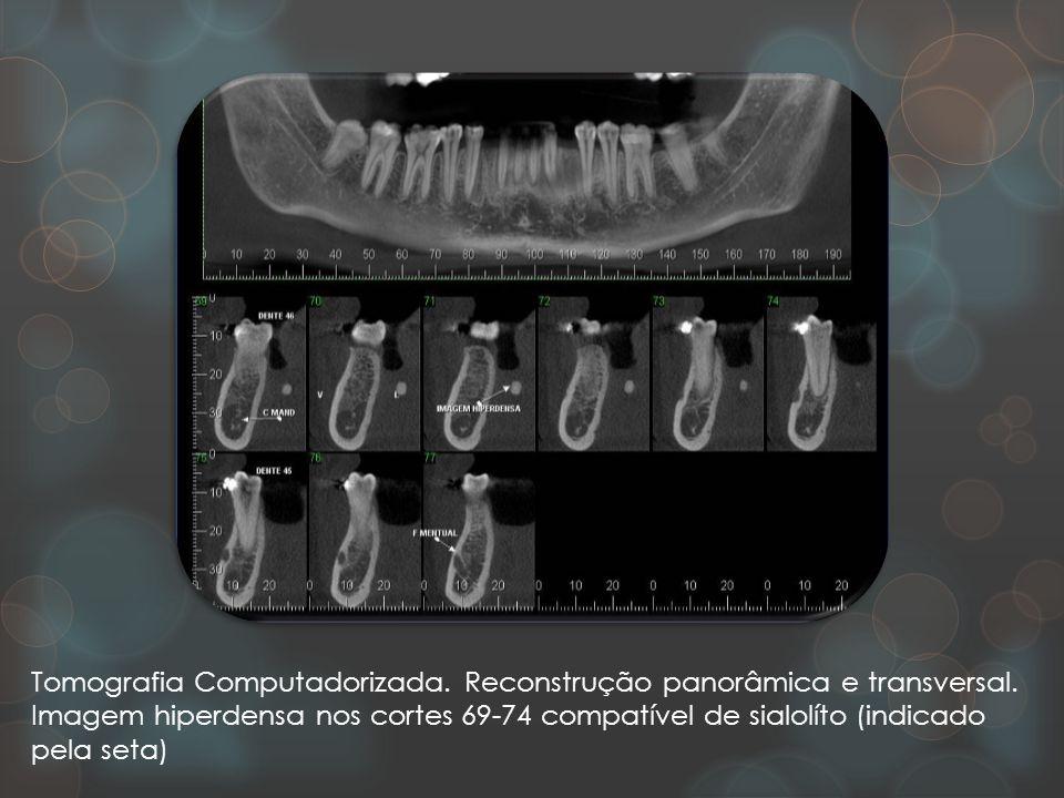 Tomografia Computadorizada. Reconstrução panorâmica e transversal.