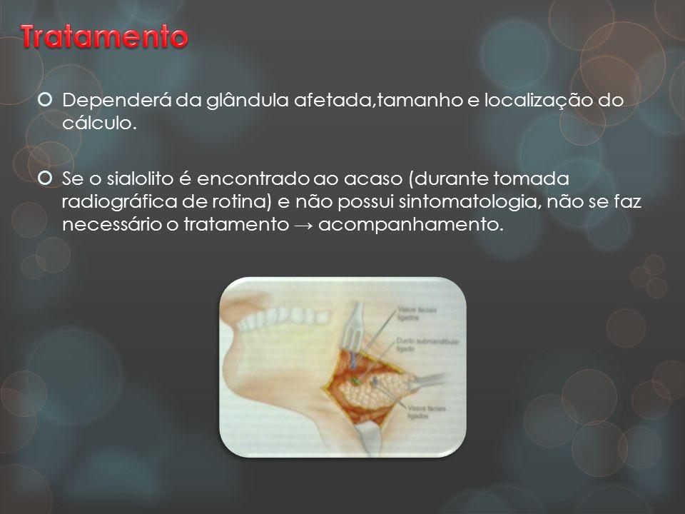 Tratamento Dependerá da glândula afetada,tamanho e localização do cálculo.