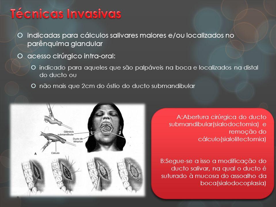 Técnicas Invasivas indicadas para cálculos salivares maiores e/ou localizados no parênquima glandular.