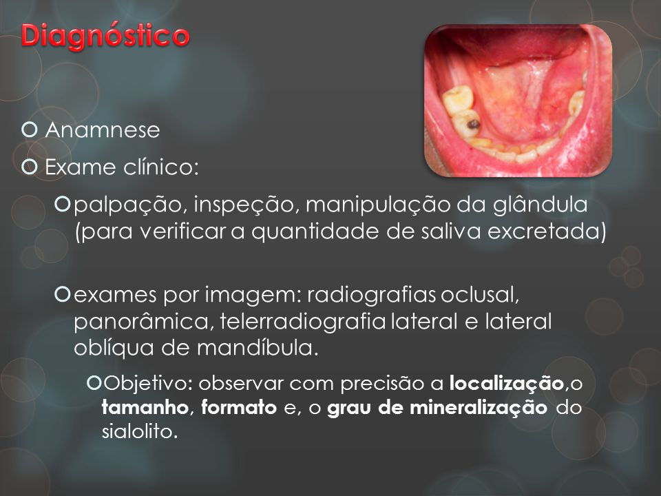 Diagnóstico Anamnese Exame clínico: