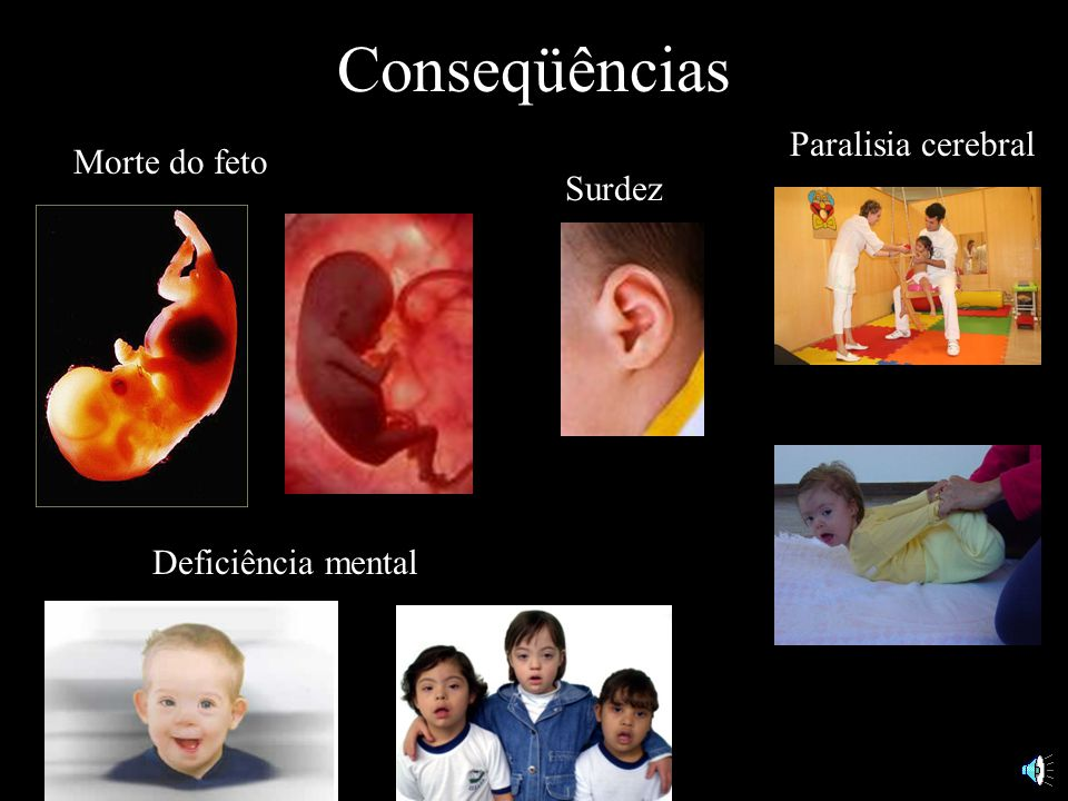 Conseqüências Paralisia cerebral Morte do feto Surdez
