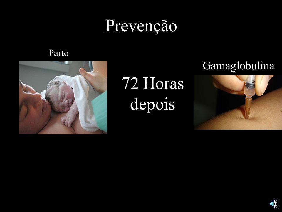 Prevenção Parto Gamaglobulina 72 Horas depois