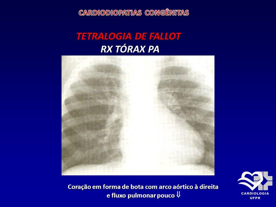 TETRALOGIA DE FALLOT RX TÓRAX PA CARDIODIOPATIAS CONGÊNITAS