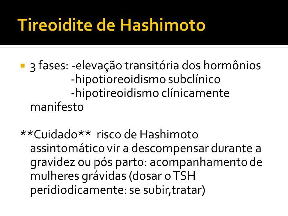 Tireoidite de Hashimoto