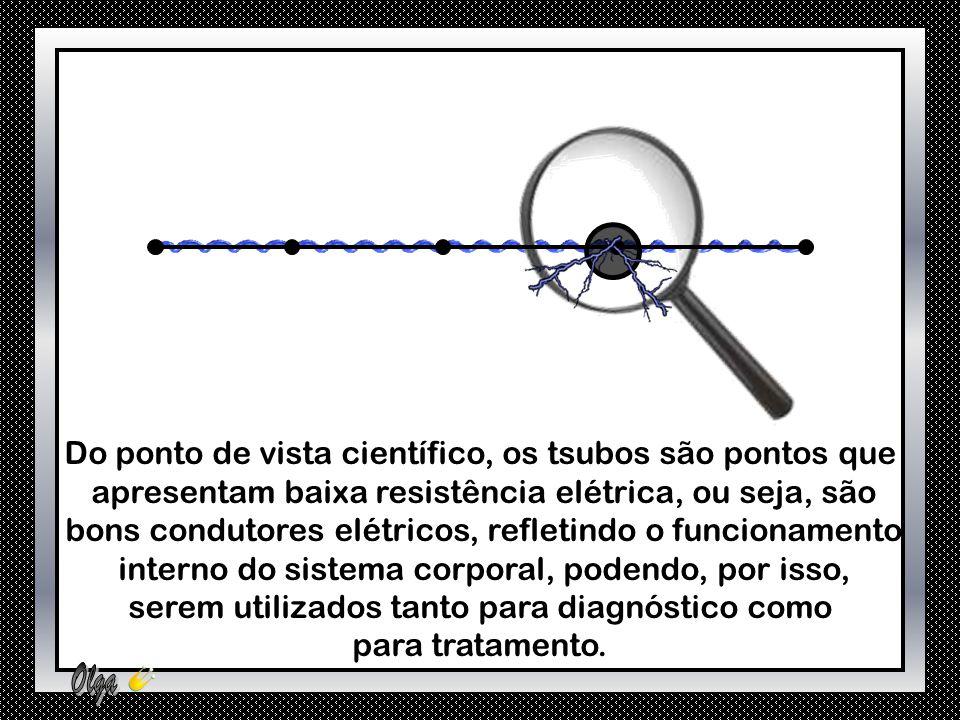 Do ponto de vista científico, os tsubos são pontos que