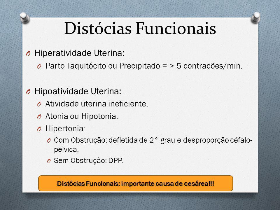 Distócias Funcionais: importante causa de cesárea!!!