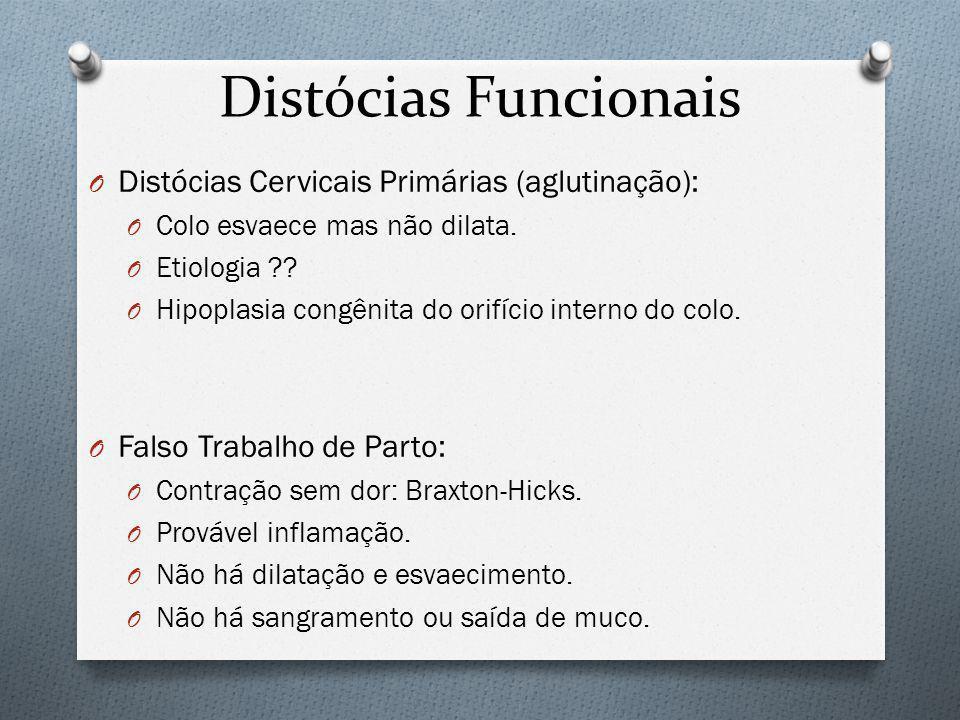 Distócias Funcionais Distócias Cervicais Primárias (aglutinação):