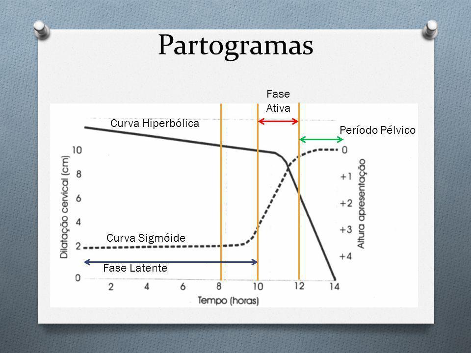 Partogramas Fase Ativa Curva Hiperbólica Período Pélvico