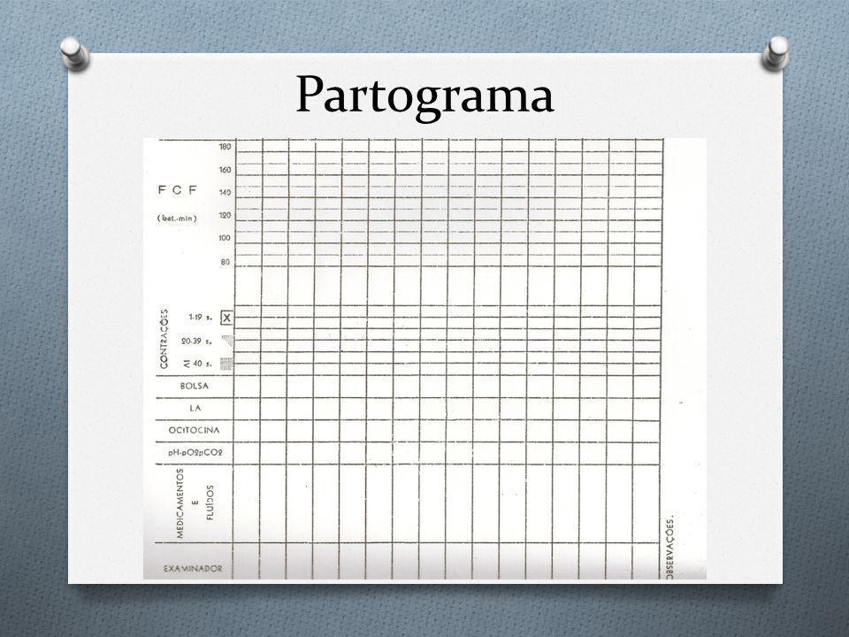 Partograma