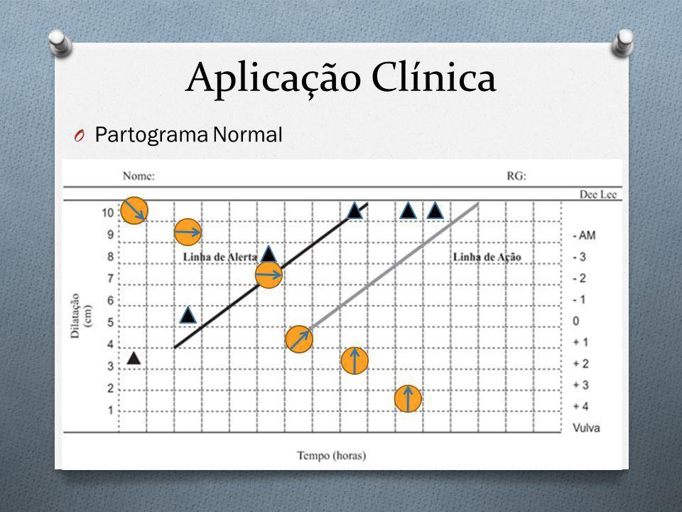 Aplicação Clínica Partograma Normal