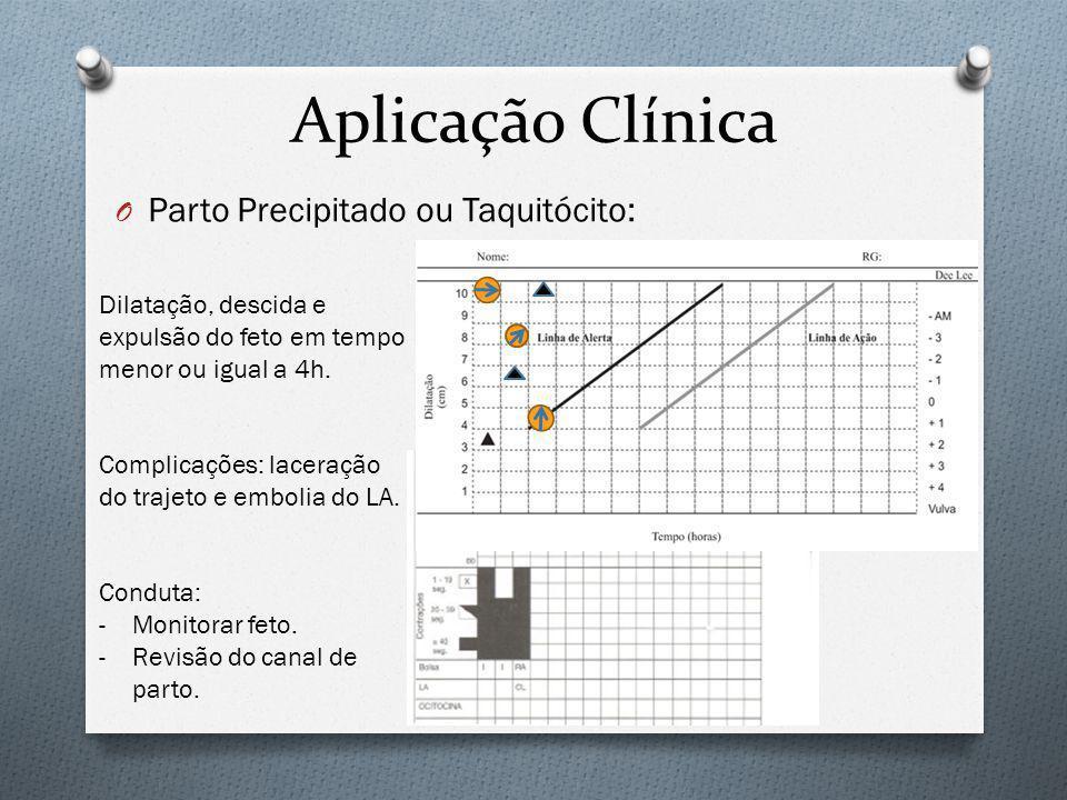 Aplicação Clínica Parto Precipitado ou Taquitócito: