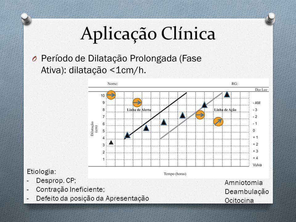 Aplicação Clínica Período de Dilatação Prolongada (Fase Ativa): dilatação <1cm/h. Etiologia: Desprop. CP;