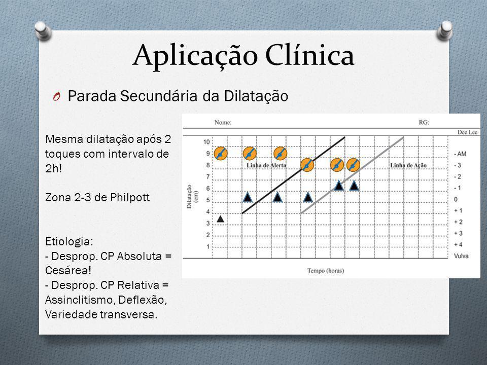 Aplicação Clínica Parada Secundária da Dilatação