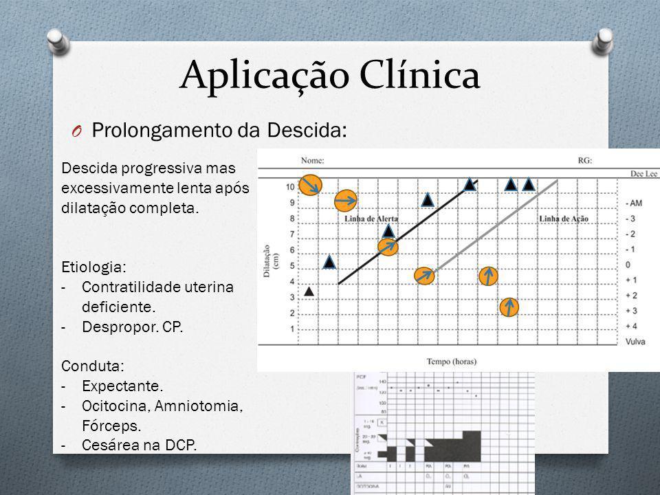 Aplicação Clínica Prolongamento da Descida: