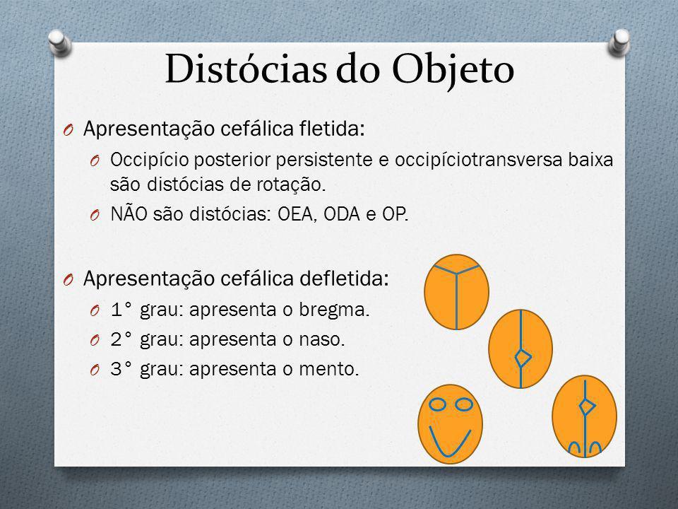 Distócias do Objeto Apresentação cefálica fletida: