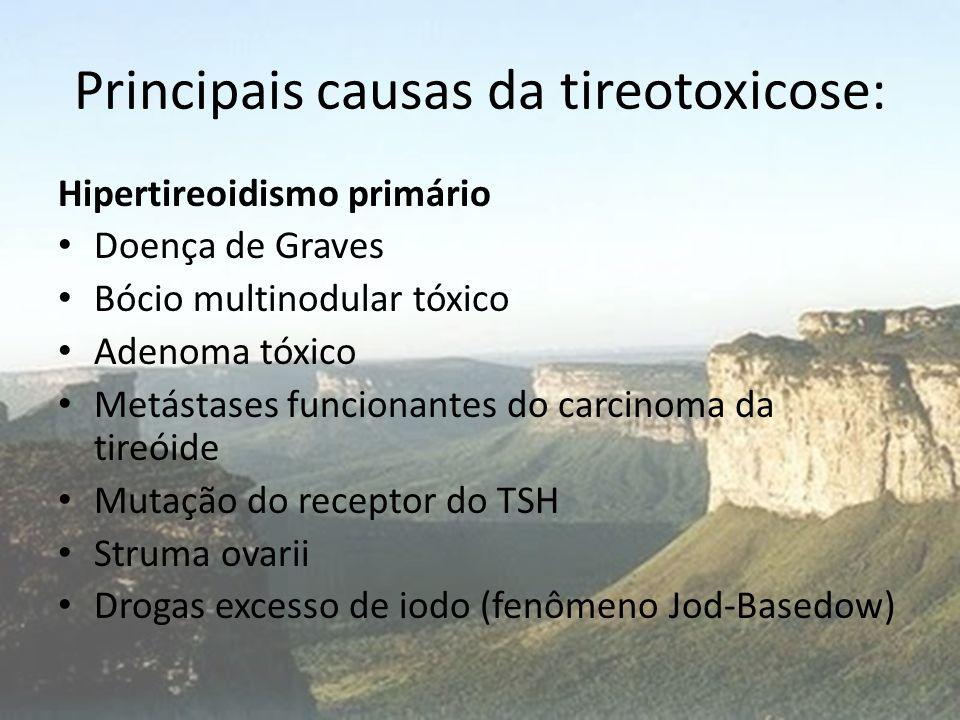 Principais causas da tireotoxicose: