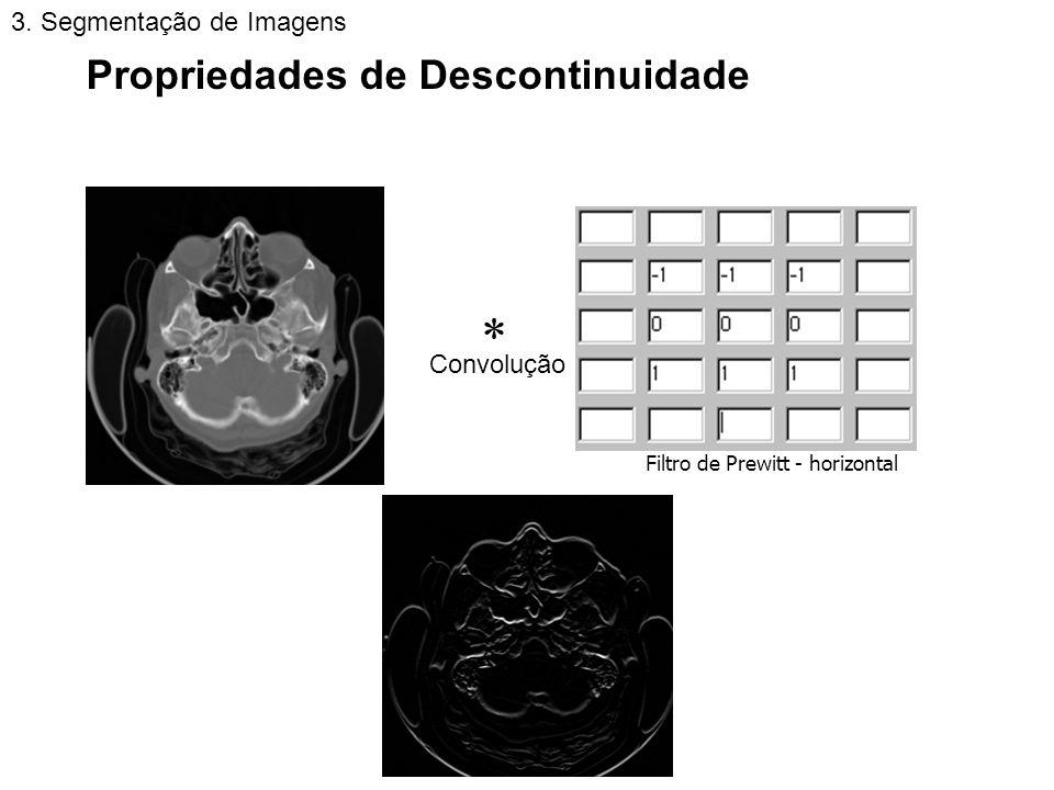  Propriedades de Descontinuidade 3. Segmentação de Imagens Convolução