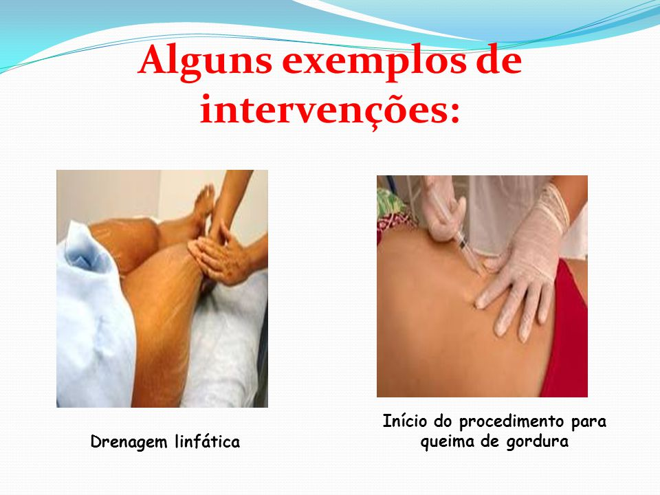 Alguns exemplos de intervenções: