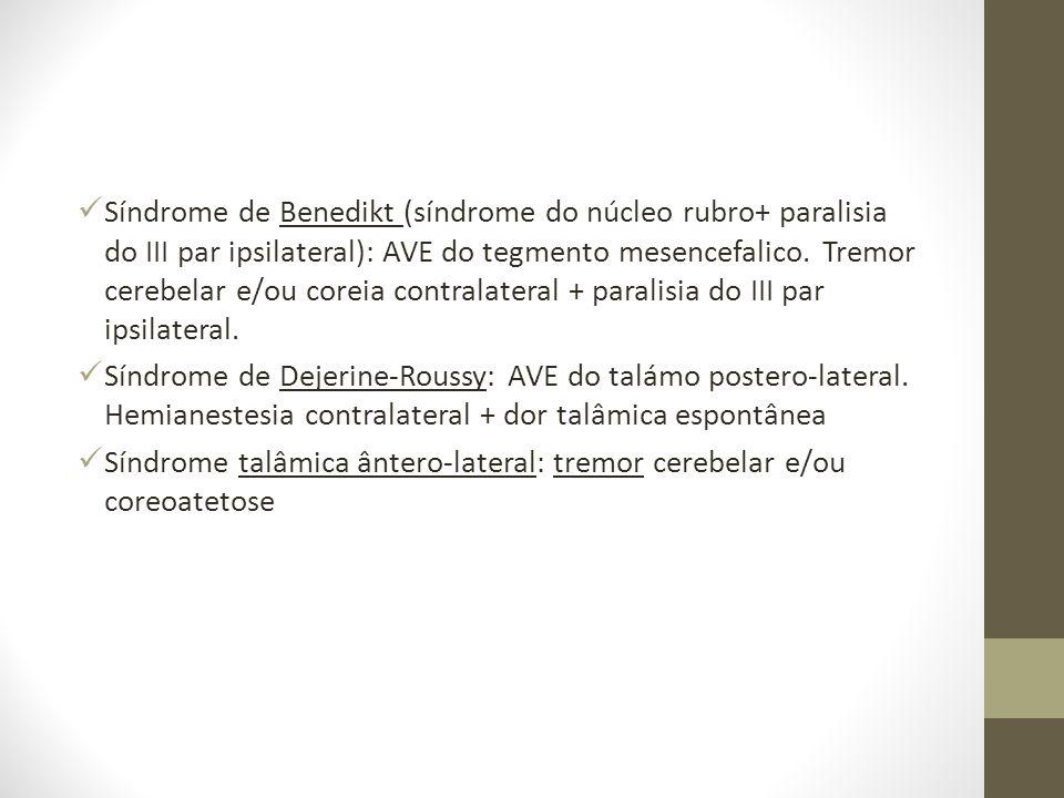 Síndrome de Benedikt (síndrome do núcleo rubro+ paralisia do III par ipsilateral): AVE do tegmento mesencefalico. Tremor cerebelar e/ou coreia contralateral + paralisia do III par ipsilateral.