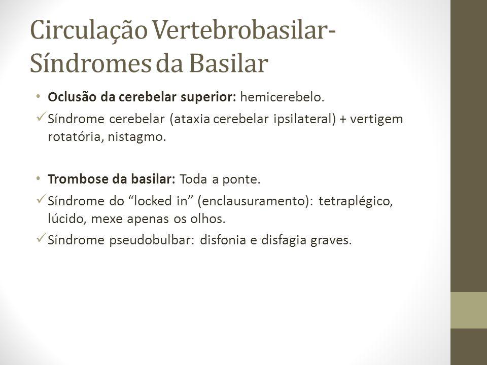 Circulação Vertebrobasilar- Síndromes da Basilar