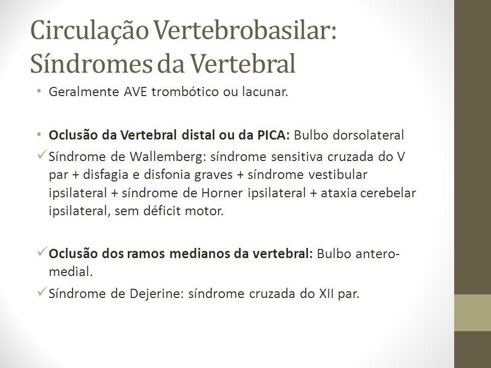 Circulação Vertebrobasilar: Síndromes da Vertebral