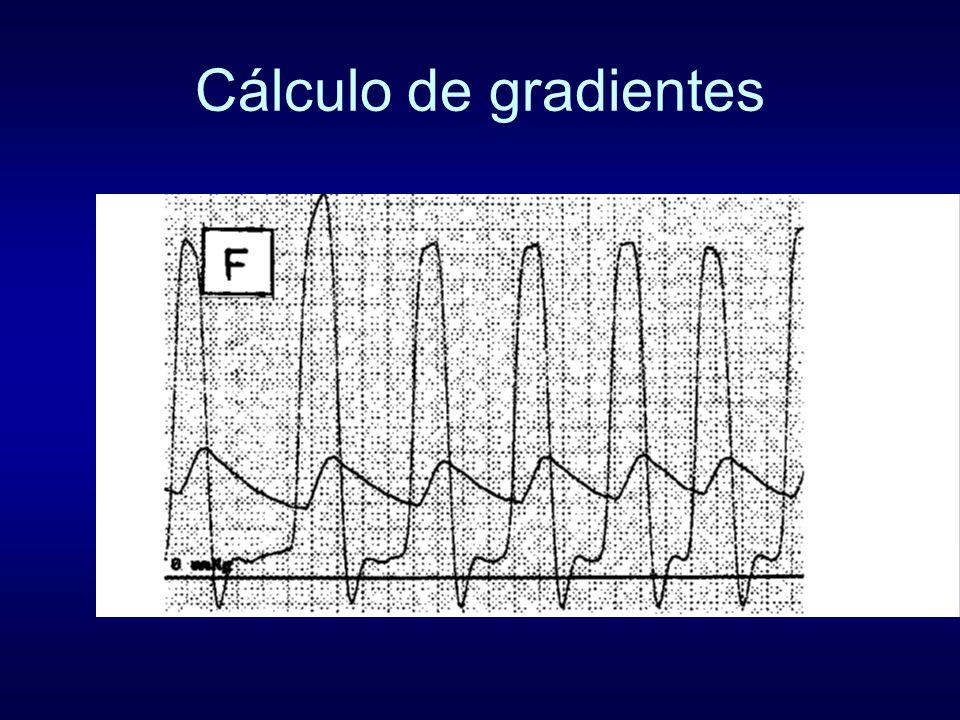 Cálculo de gradientes