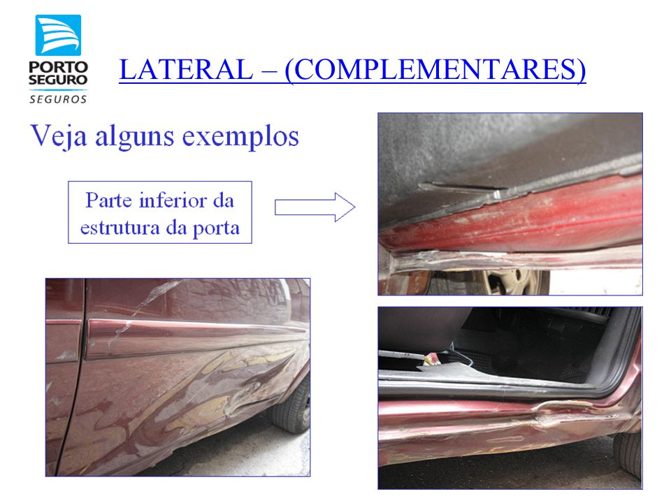 LATERAL – (COMPLEMENTARES)