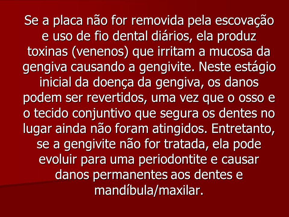 Se a placa não for removida pela escovação e uso de fio dental diários, ela produz toxinas (venenos) que irritam a mucosa da gengiva causando a gengivite.