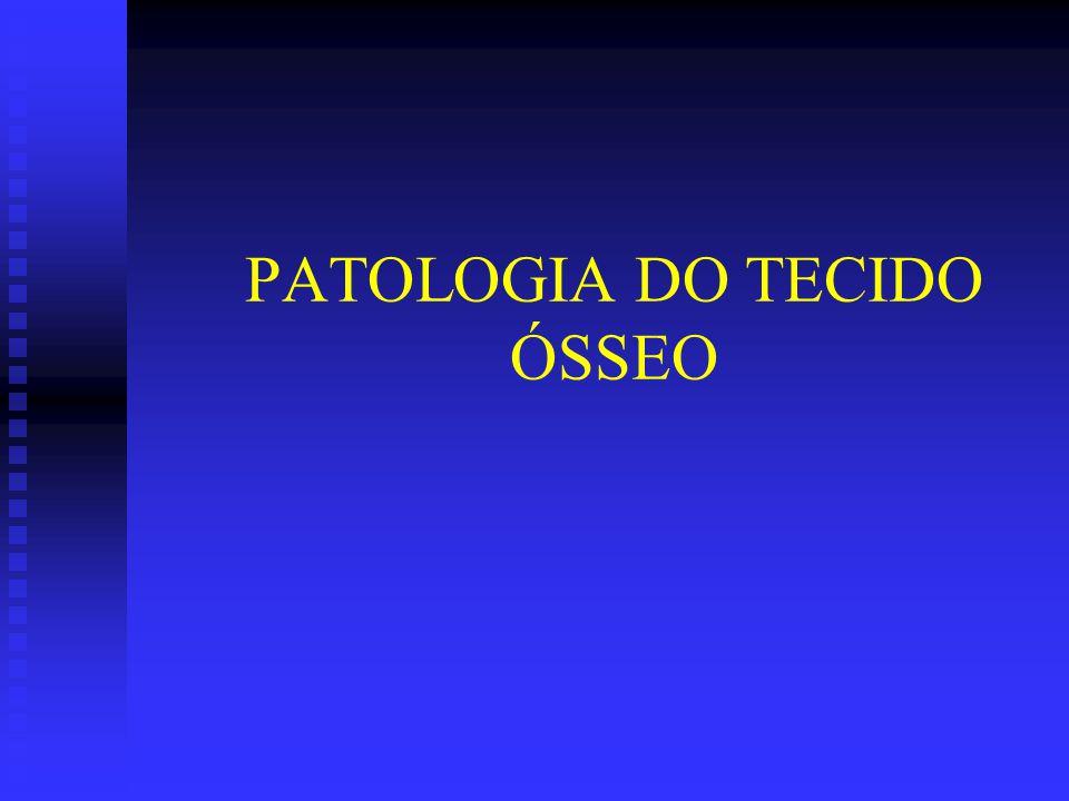 PATOLOGIA DO TECIDO ÓSSEO