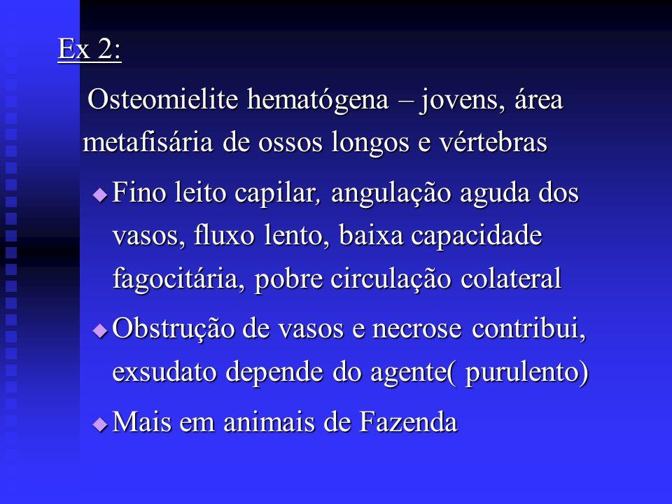 Ex 2: Osteomielite hematógena – jovens, área metafisária de ossos longos e vértebras.