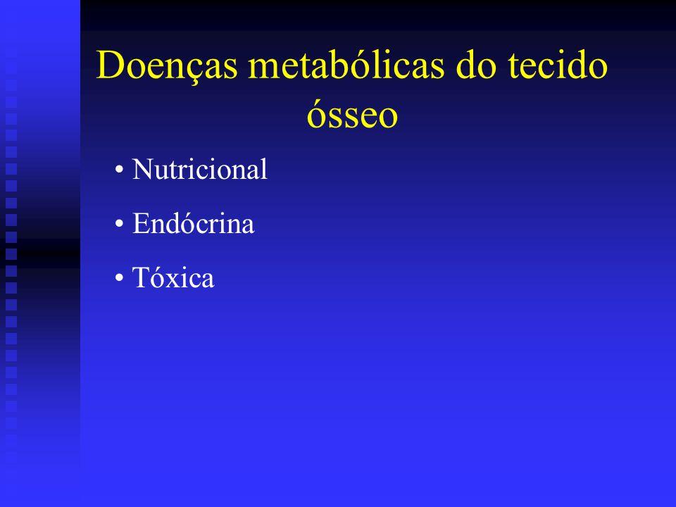 Doenças metabólicas do tecido ósseo