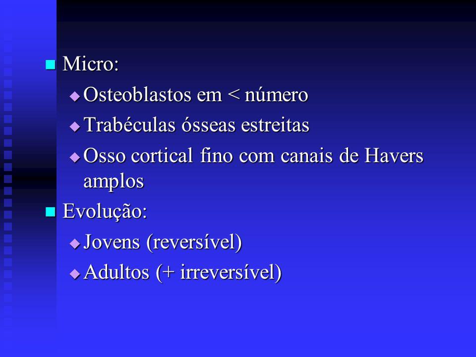 Micro: Osteoblastos em < número. Trabéculas ósseas estreitas. Osso cortical fino com canais de Havers amplos.