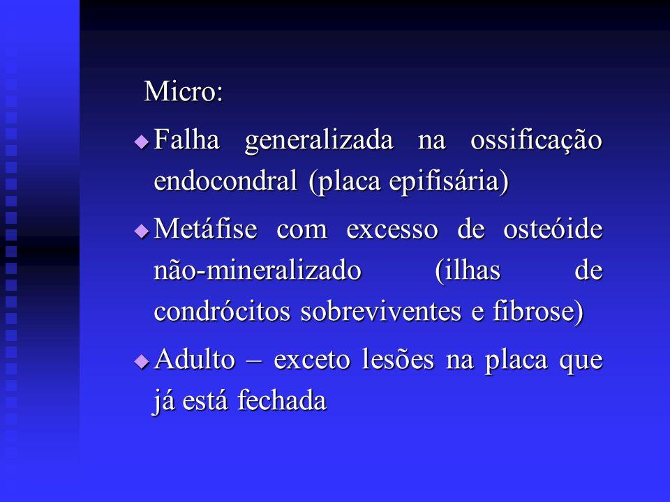 Micro: Falha generalizada na ossificação endocondral (placa epifisária)