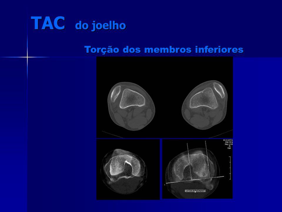 TAC do joelho Torção dos membros inferiores