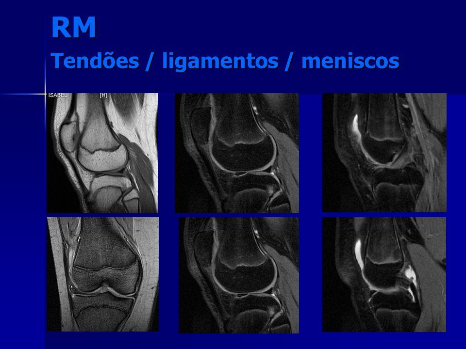 RM Tendões / ligamentos / meniscos