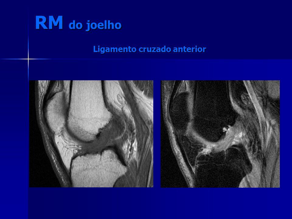 RM do joelho Ligamento cruzado anterior