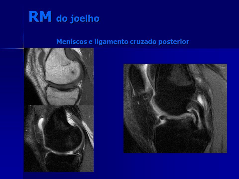 RM do joelho Meniscos e ligamento cruzado posterior